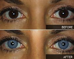 Ruskea silmä muutettu siniseksi.